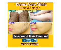 Best Permanent Hair Removal in Himayat Nagar Hyderabad | Permanent Hair Removal in Hyderabad