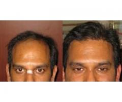FUE Hair Transplant and Repair in Chandigarh
