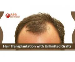 Hair transplant cost in Punjab