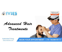 hair transplantation in Hyderabad