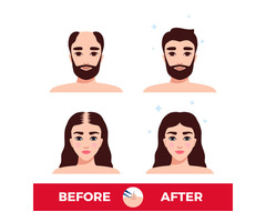 Get body hair transplant in Jaipur at an affordable cost.
