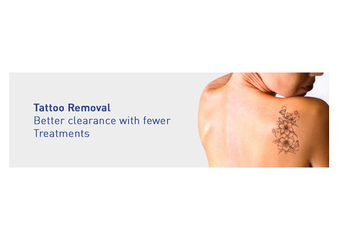 Laser tattoo removal in Coimbatore